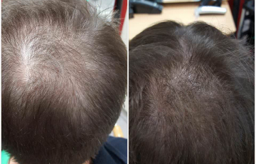 Comparison after 10 weeks of Stop & Grow application